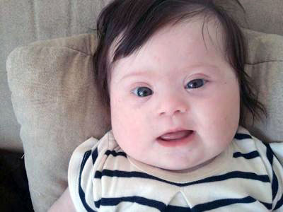 2016-03-22-Mom Down Syndrome Baby